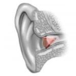 Buy Signia Siemens Hearing Aids Online